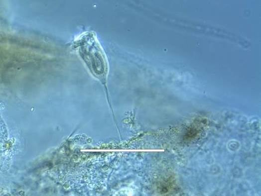 Vorticella in pond water