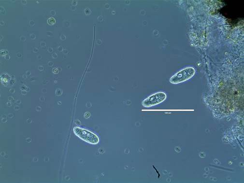 Colpidium in pond water