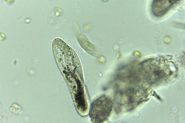 Paramecium in pond water