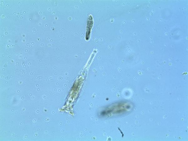 Rotifers in pond water