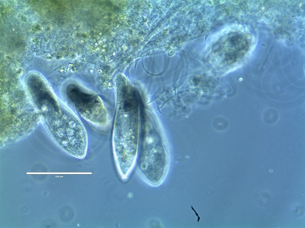 Paramecium feeding by phagocytosis